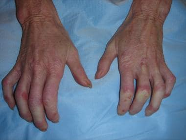 Image result for sclerodactyly