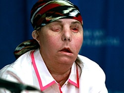 Woman Is First in US to Get Second Face Transplant 2