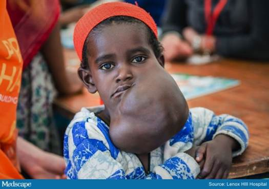 Married Docs Remove Ethiopian Girl's Lethal Facial Tumor 3