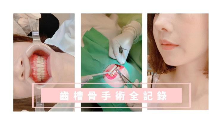 牙套日記:齒槽骨手術全紀錄 手術心得篇