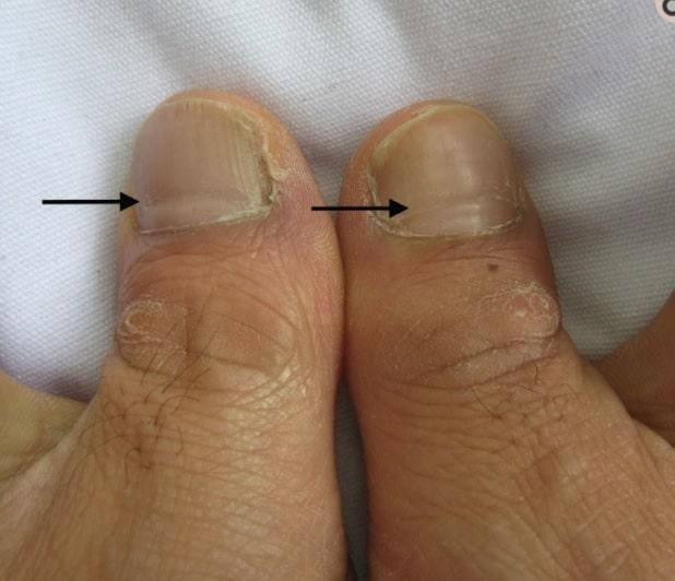 Sinais nas unhas podem indicar se você já teve Covid-19. Imagem: Artigo Linhas de Beau associadas à Covid (NCBI)