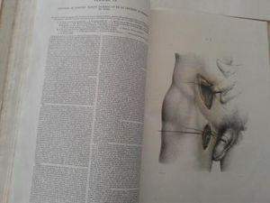 Cet ouvrage sur la ligature des artères avait subi un dégat des eaux, provoquant des mouillures et des oxydations. Il a fallu le démonter entièrement. Le nettoyage a été rendu délicat car les rehauts de couleur, réalisés à la main, n'étaient pas stables.