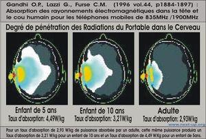 DAS-radiation-telephone.JPG