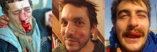 blessures-flashball1jpg.jpg