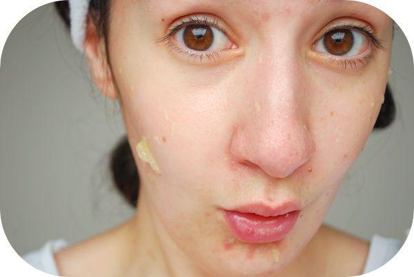 Le Peeling Au Citron Solution Naturelle Contre Les Cicatrices