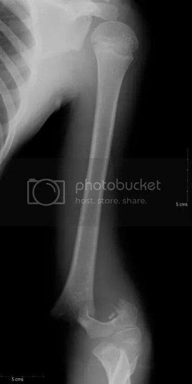 Trauma Rounds Pediatric Supracondylar Fractures, Samantha Spencer Childrens Hospital Boston