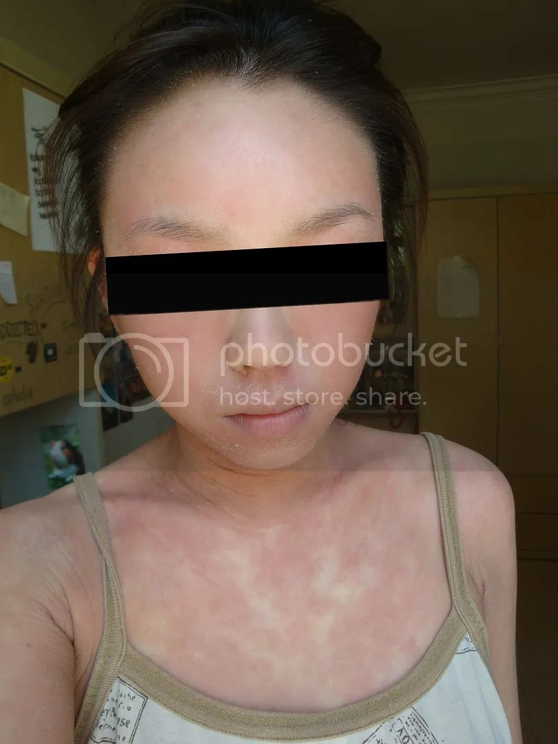 topical steroid withdrawal, red skin syndrome