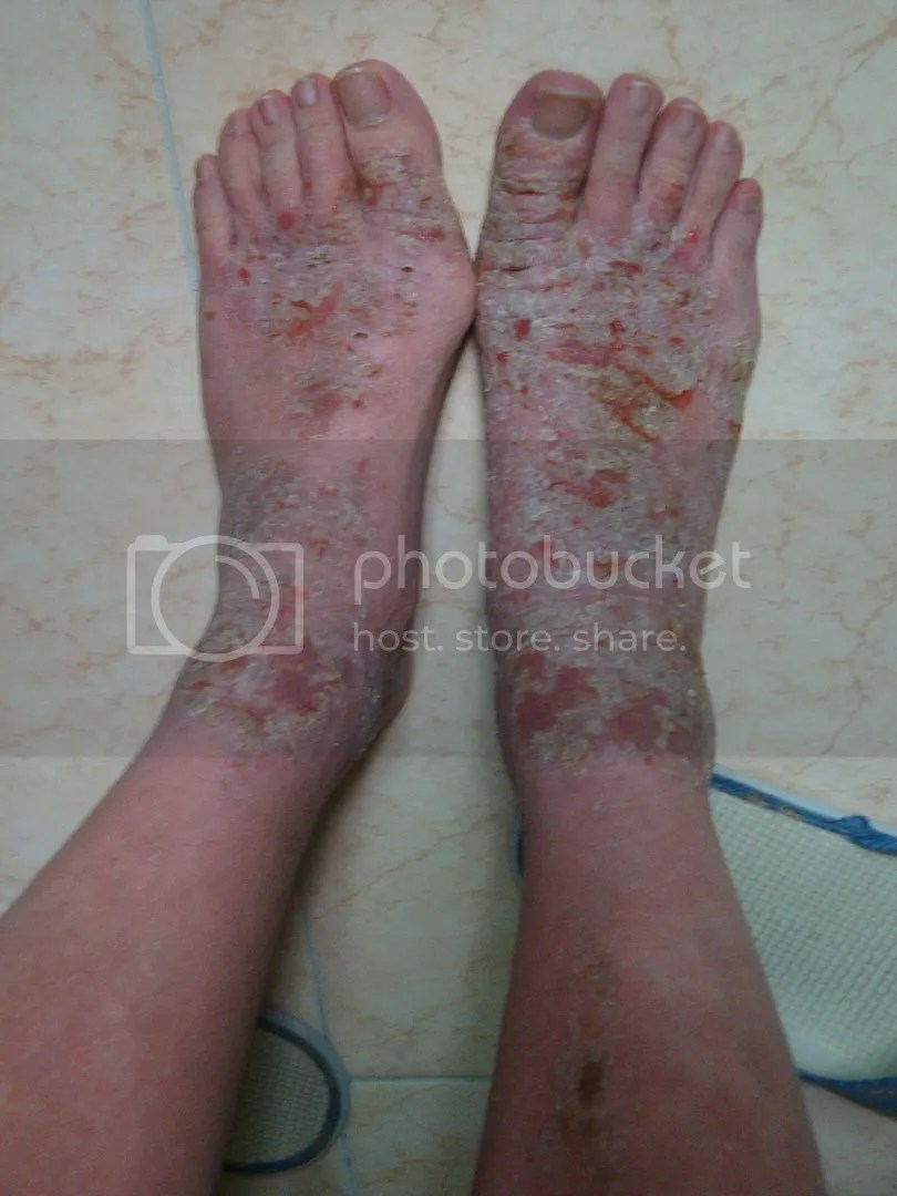 topical steroid withdrawal, feet before and after