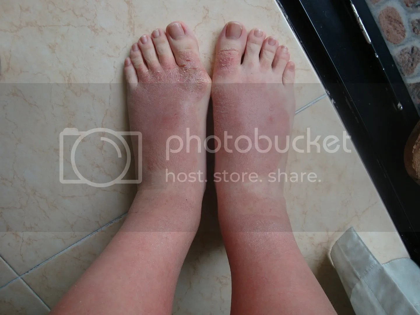 topical steroid withdrawal, swollen feet