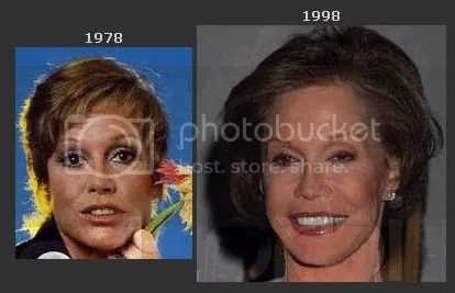 Mary Tyler Moore after multiple facelifts