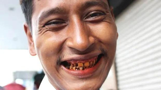 Lo que más puede impresionar de las caras de los hombres birmaneses es la dentadura rojiza que la mayoría lleva. Esto es porque es muy común que los hombres pasen su tiempo mascando una pasta de nuez betel y tabaco y como lo hacen todos los días, terminan con los dientes manchados de un color vinotinto.