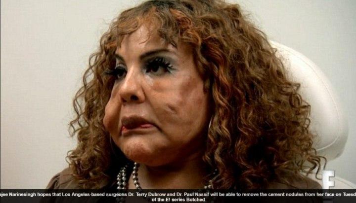 Desesperada por estar com rosto deformado, a transexual Rajee Narinesingh, de 48 anos, implora ajuda médica para remover os caroços que se formaram em suas bochechas