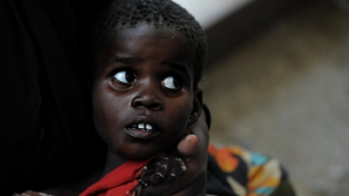 Somalia - A young boy with severe diarrhea waits for treatment