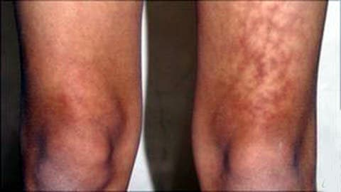 Le syndrome de la peau grillée