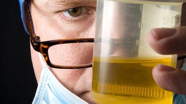 Un médecin regarde un échantillon d'urine