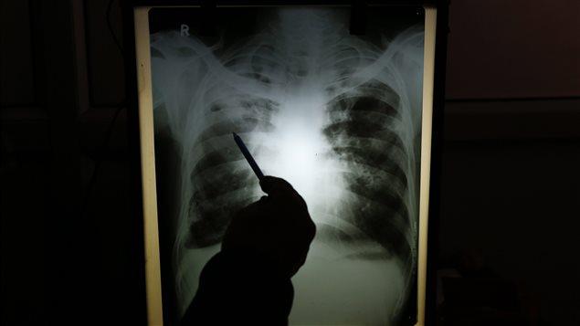 Radiographie d'un patient atteint de la tuberculose (archives)
