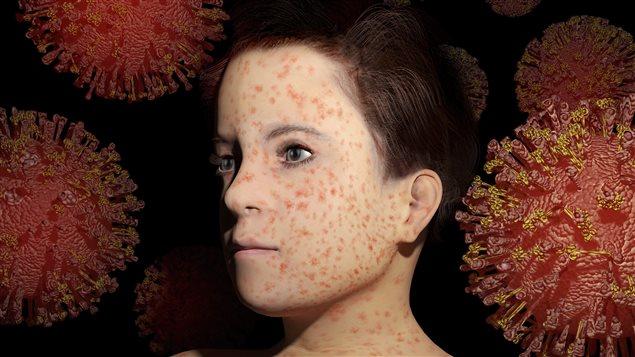 Un enfant atteint de la rougeole avec une représentation du virus