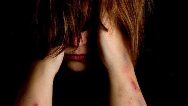 L'automutilation commence en moyenne vers l'âge de 13 à 15 ans et est plus souvent remarquée chez les adolescentes et les jeunes adultes. Les comportements d'automutilation sont deux fois plus fréquents chez les personnes de sexe féminin que chez les personnes de sexe masculin.