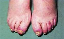 Pictures Of Psoriatic Arthritis