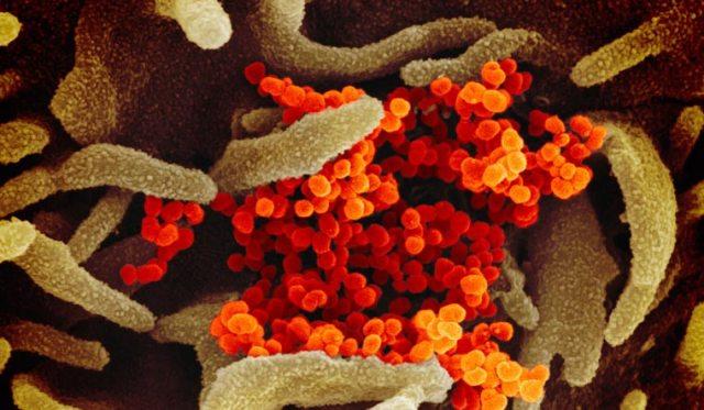 Virus Outbreak-New Testing Option