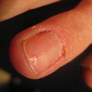 Image Led Take Off Fake Nails Step 20