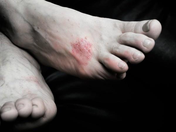 Under Skin Red Rash Hands