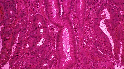 Study: First Test for Colon Cancer Recurrence