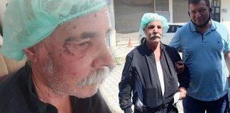 Sakarya'da gittiği pazarda öldüresiye yumruklu saldırıya uğradı