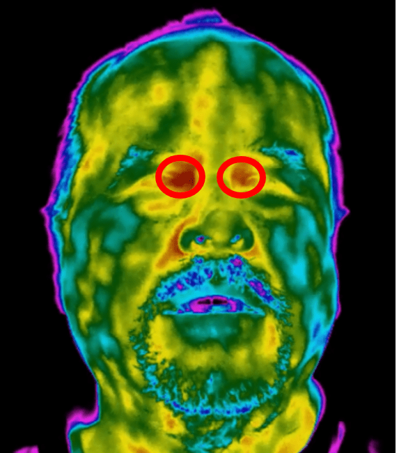 Figure 2: The tear duct region of the face (inner canthus) offers the most accurate part of the face when it comes to optical temperature measurement