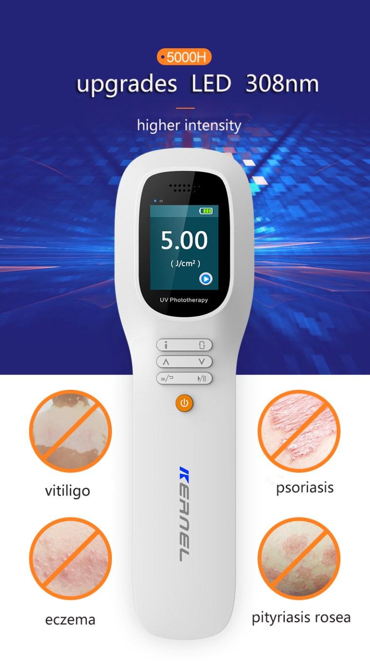 308nm excimer laser vitiligo