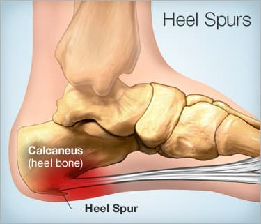 heel spur remedy
