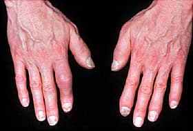 In The Normal Potion Prevalence Of Psoriatic Arthritis Ranges From