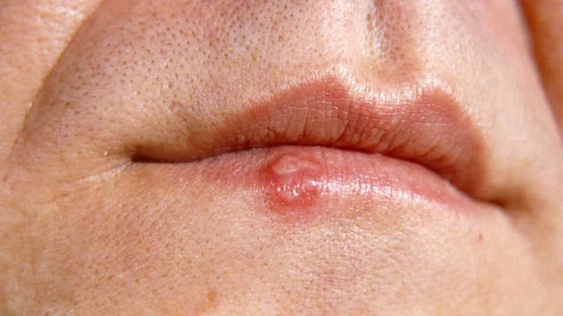 Ringworm On Lips Picture Lipstutorial Org