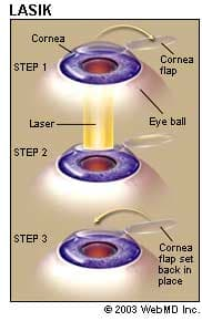 Different types of lasik surgery