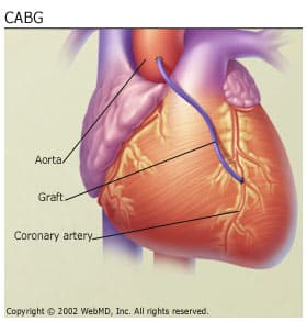 Heart Failure - CABG