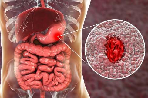 what is ulcer?