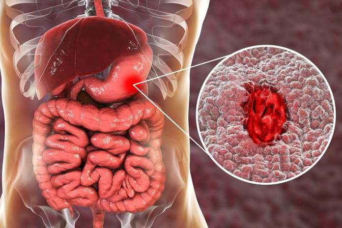 Image result for what is ulcer