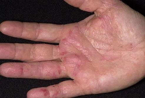 skin problems on feet