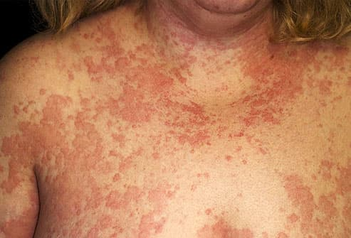 Out-of-Control Allergy Symptoms: Treatment Relief in Pictures