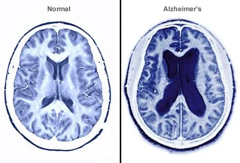 Alzheimer Brain MRI