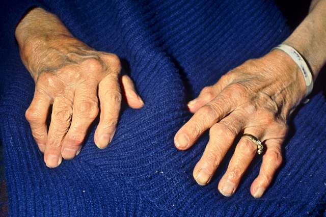 photo of hands with osteoporosis