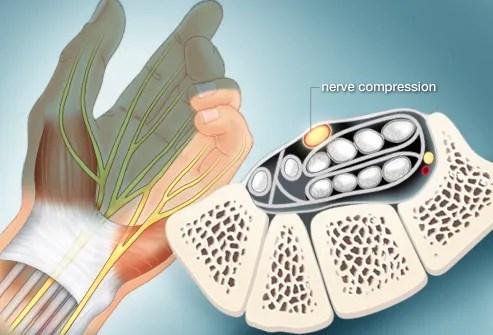 illustration of nerve compression