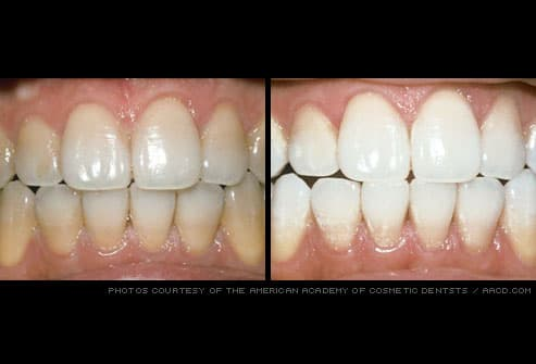 stained teeth professionally whitened