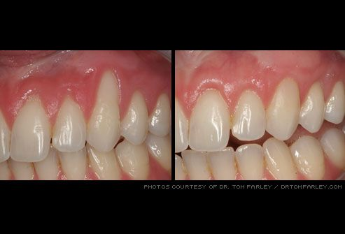 gum recession fixed by grafting surgery