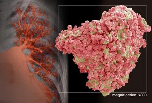 enhanced image of pulmonary embolism