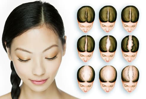 women s hair loss pictures causes treatments and more