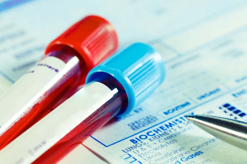 blood vials and test results