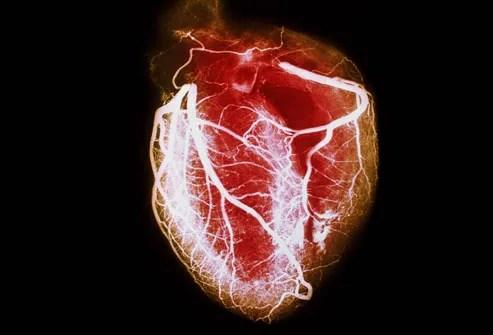 arteriogram showing coronary arteries of healthy h