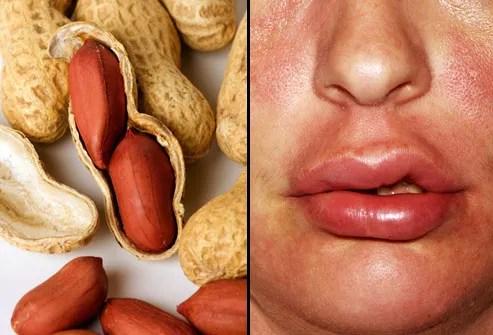 webmd_rm_photo_of_peanut_allergy.jpg