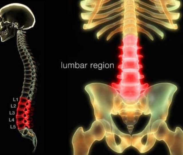 What Is Low Back Pain